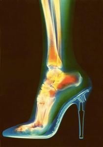 bone spur ankle image